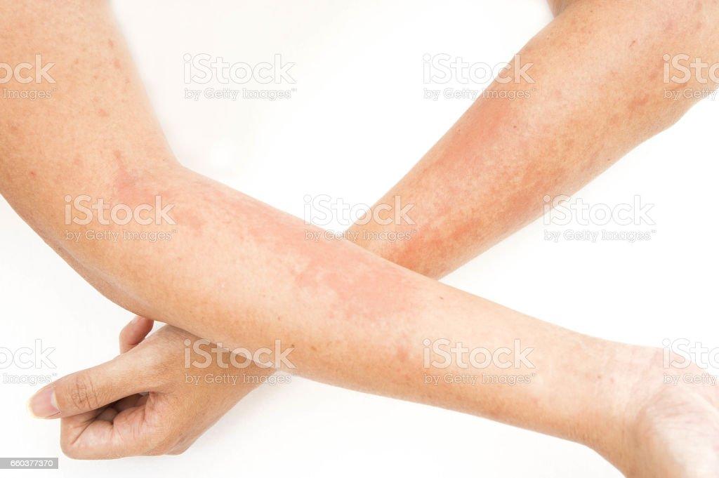 Hautausschläge, Allergien Kontaktekzem, allergisch auf Chemikalien, Pilzinfektionen von Exposition – Foto