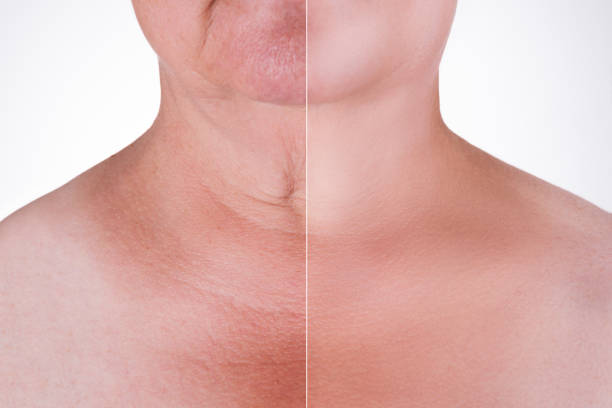 Skin rejuvenation on the neck, before after anti aging concept, wrinkle treatment, facelift and plastic surgery stock photo