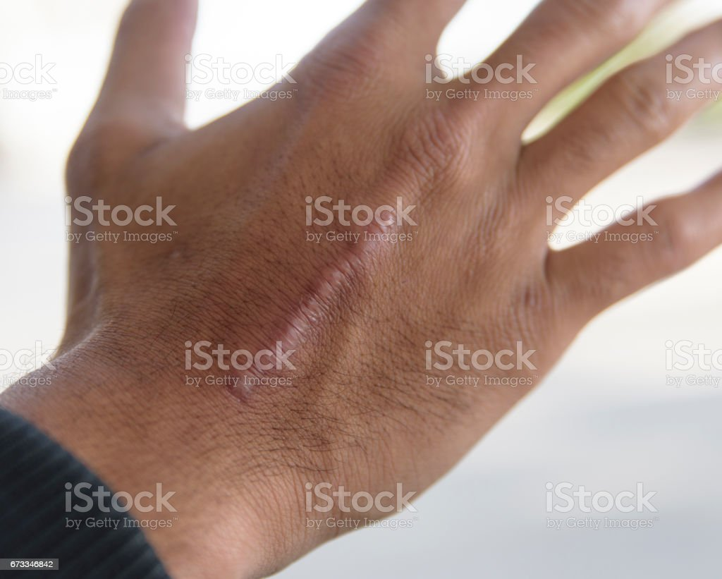 Skin scar royalty-free stock photo