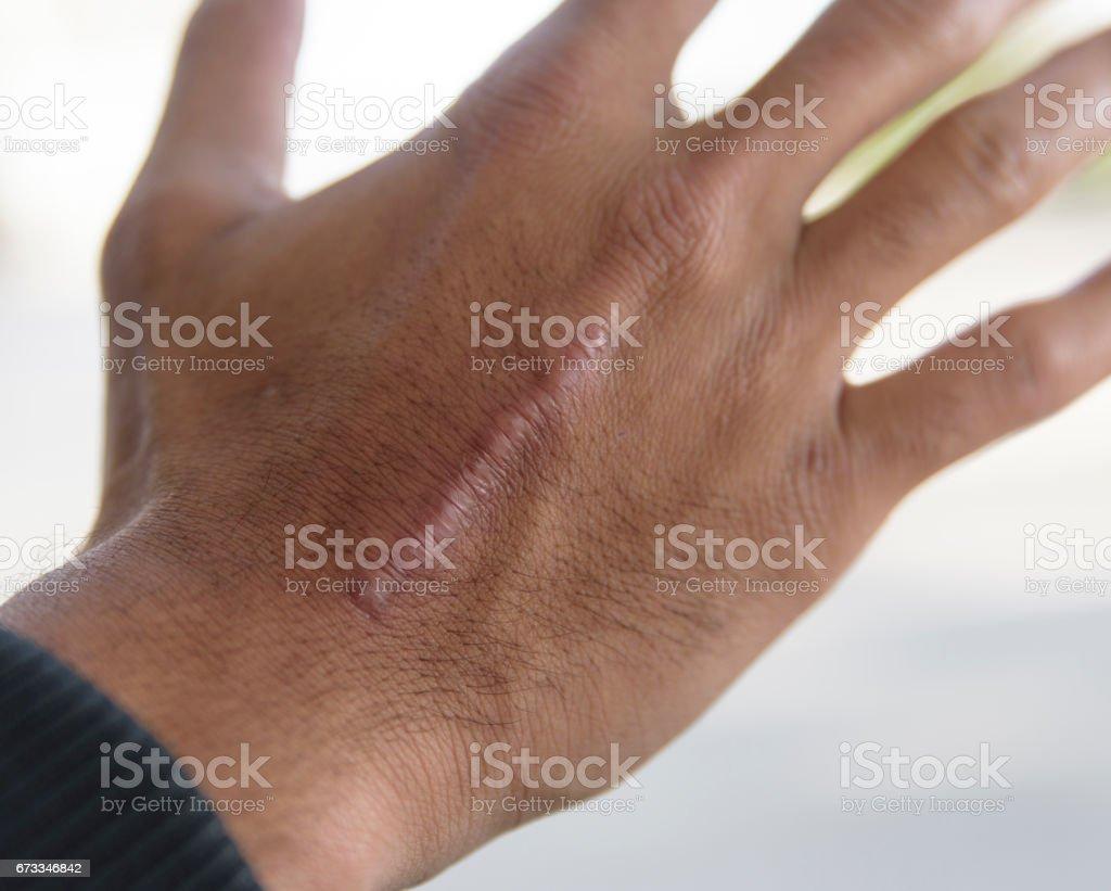 Skin scar stock photo