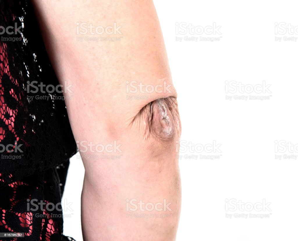 Skin scar royalty-free stock photo