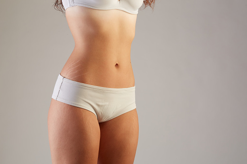Skin Stretch Marks Stock Photo - Download Image Now