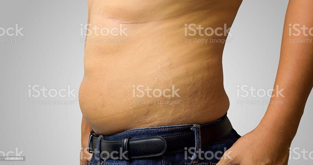 Skin Stretch stock photo
