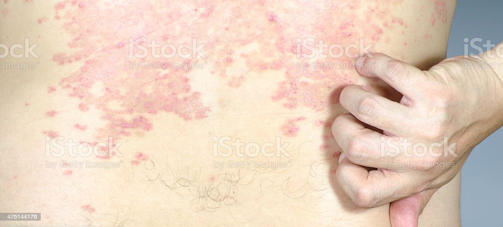 skin texture ill allergic rash dermatitis eczema stock photo