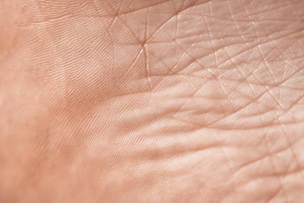 La texture de la peau - Photo