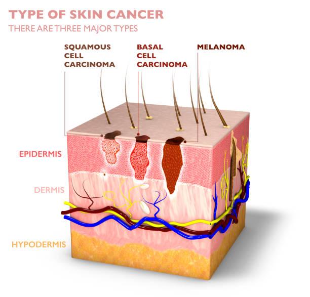 Hauttumoren, Maulwürfe und Flecken, 3d-Abschnitt der Hautschicht – Foto