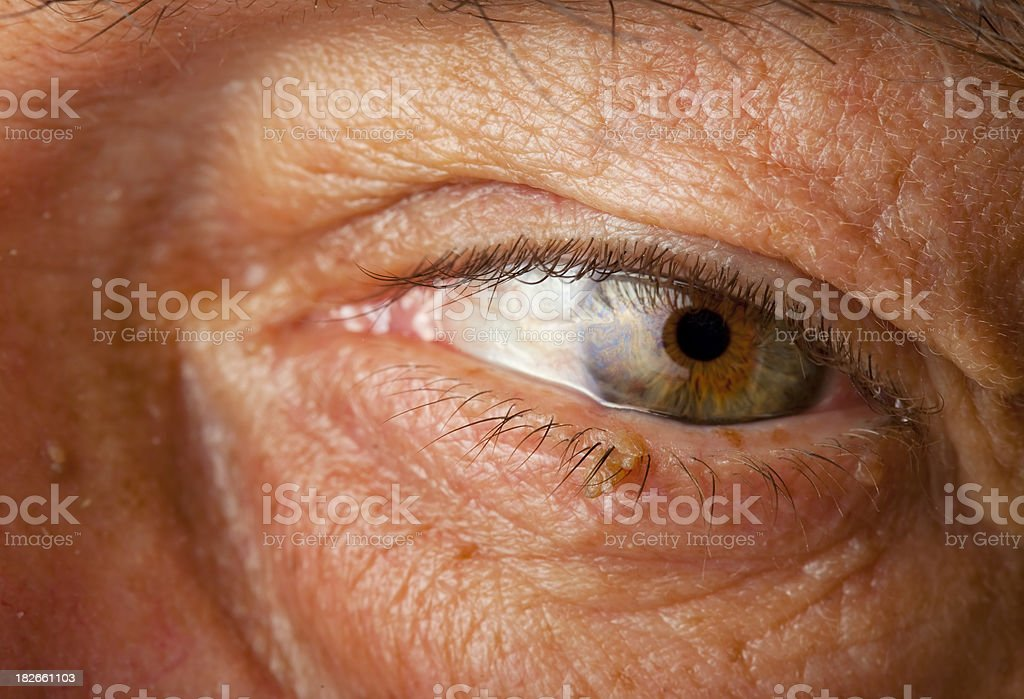 Skin Wart Growing On An Eyelid Stock Photo More Pictures Of Adult