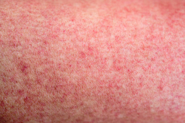 Skin with dengue fever red rashes Close up human skin with dengue fever red rashes measles stock pictures, royalty-free photos & images