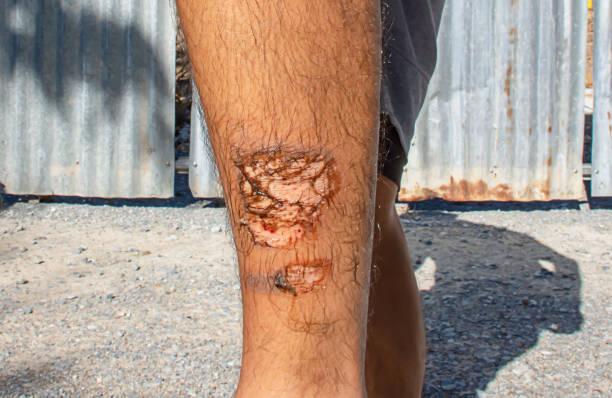 hautverletzungen des beines von der hitze. - sonnenbrand heilen stock-fotos und bilder