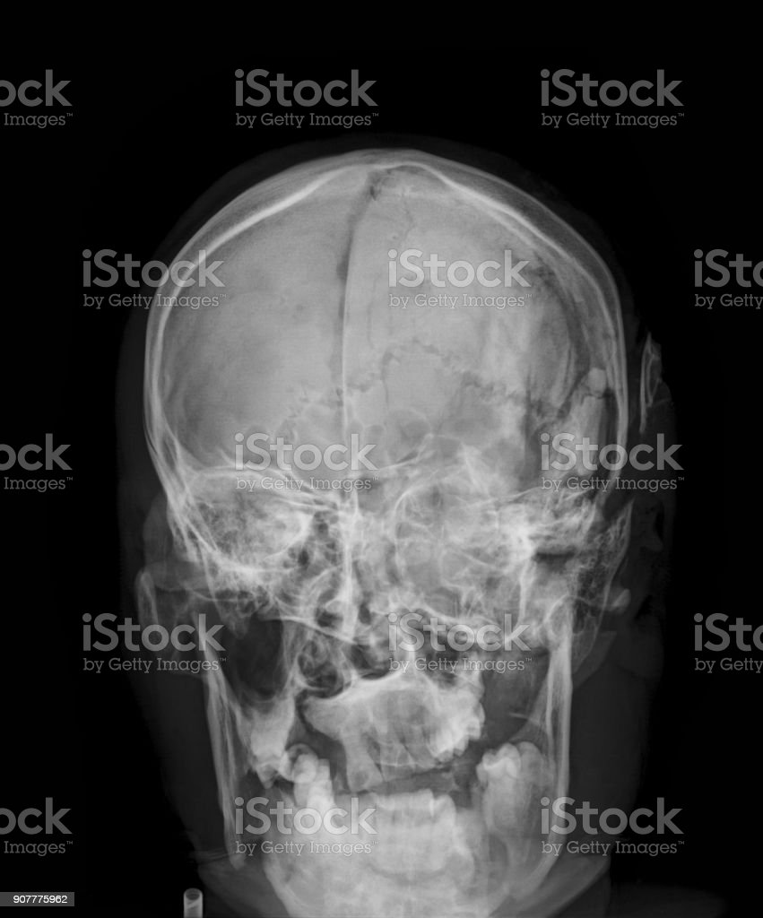 skull fractures x-ray image, anteroposterior view stock photo