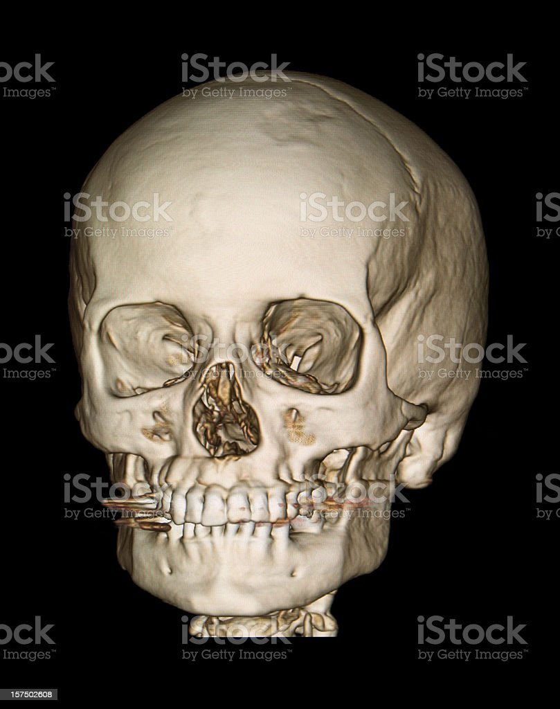 3d Skull Front View Cat Scan Stock Photo & More Pictures of 3D ...