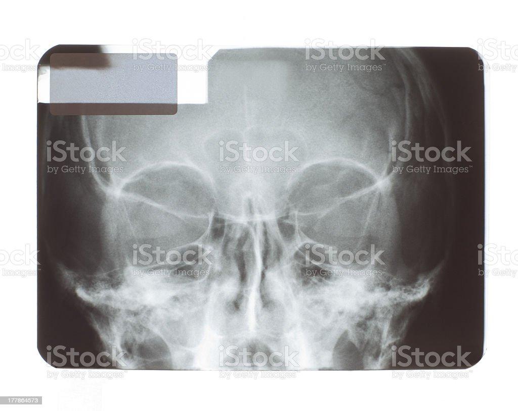 Skull radiograph royalty-free stock photo