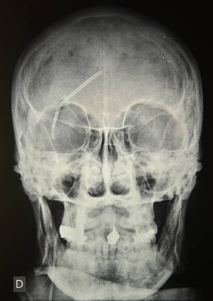 Skull radiography stock photo