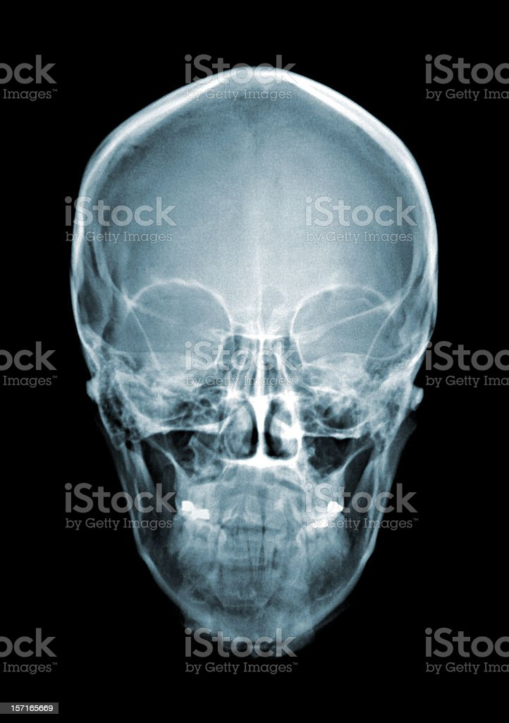 Skull Xray Stock Photo & More Pictures of Anatomy | iStock