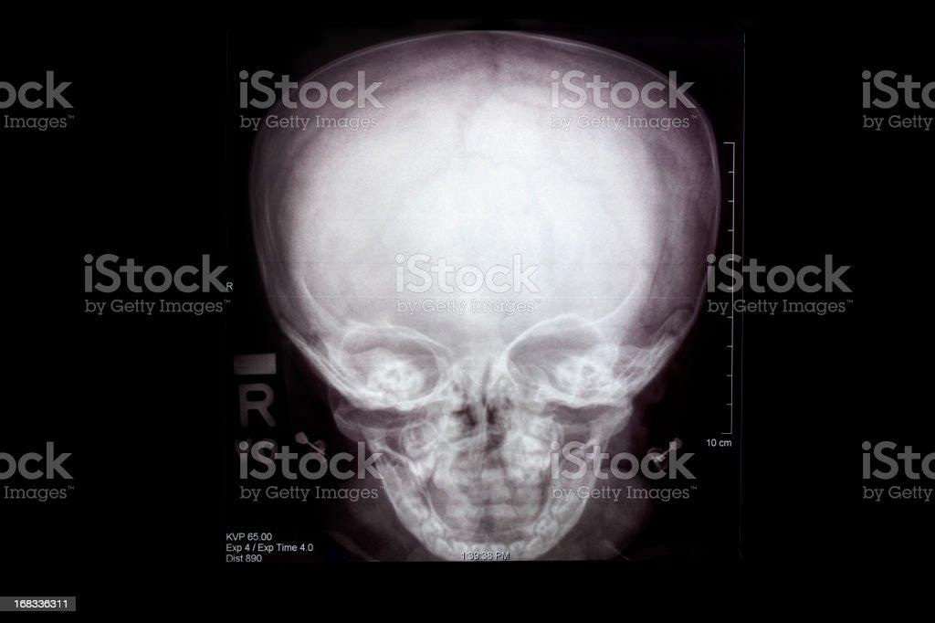 skull x-ray stock photo