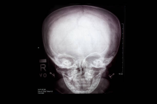 skull x-ray - disfigure stock pictures, royalty-free photos & images