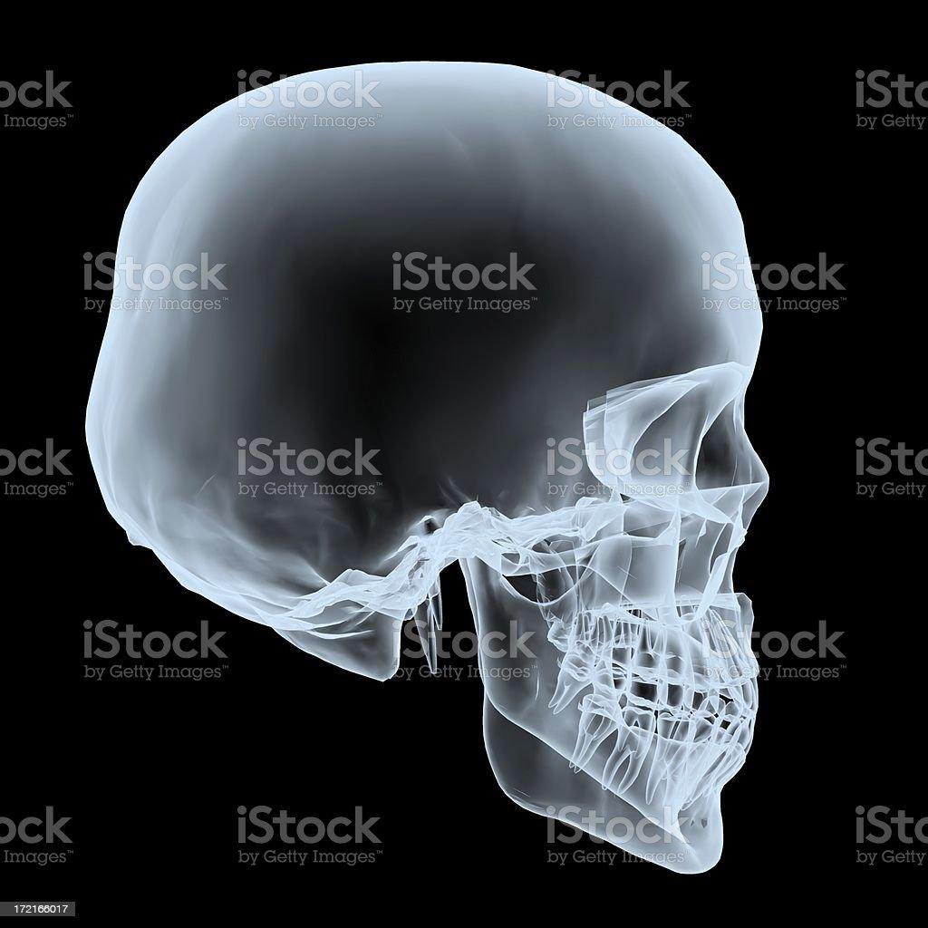 Skull Xray stock photo