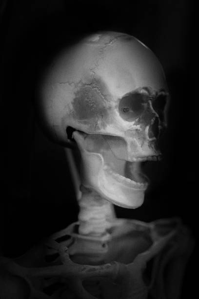 Skull X-Ray Skeleton Spooky Halloween Face stock photo