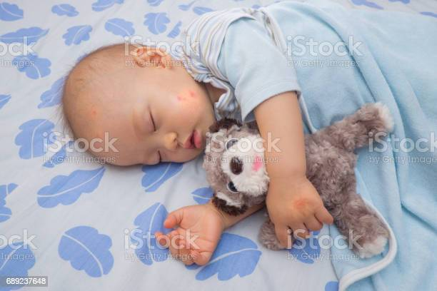 Sleeping asian baby with red spot blister from mosquito bite picture id689237648?b=1&k=6&m=689237648&s=612x612&h=nyzk kohl 7i9gmfjxd7qxq7zmbsuav7ozdnese1j m=