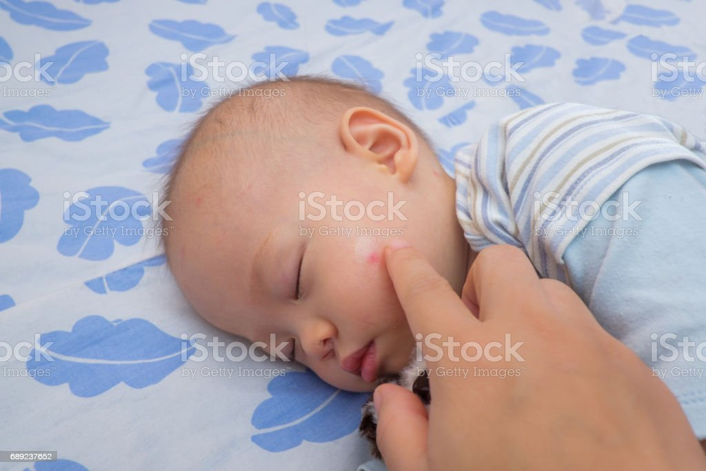 Sleeping Asian baby with red spot, blister from mosquito bite stock photo