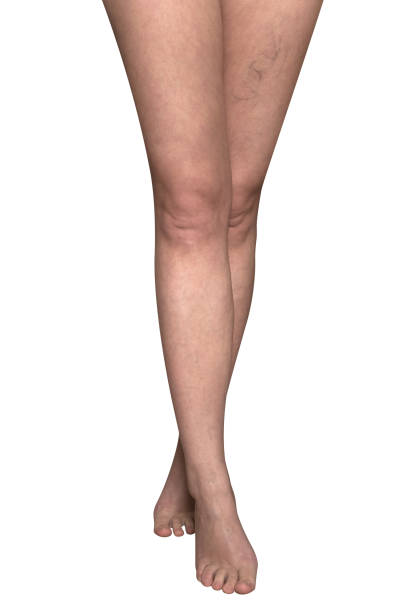 slender female legs with protruding veins. - defection stock photos and pictures