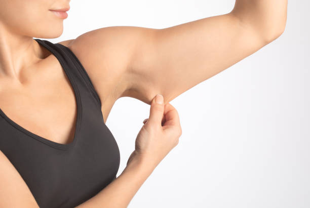 A slender woman shows saggy skin on her arm. The concept of proper nutrition and healthy lifestyle. stock photo