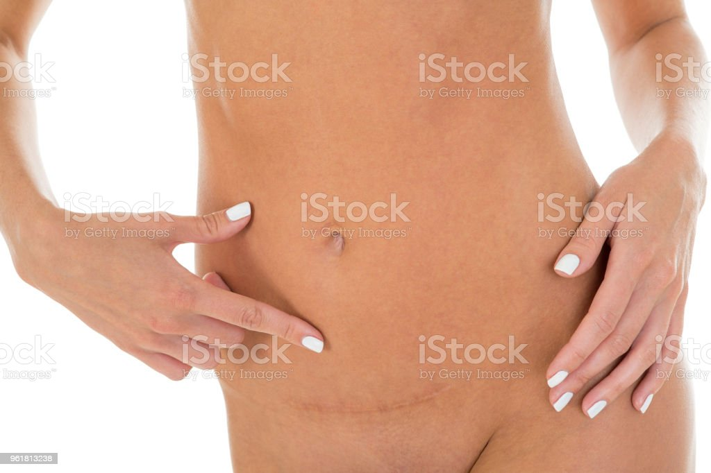 Slim woman point at her belly, with postpartum scar. White background stock photo