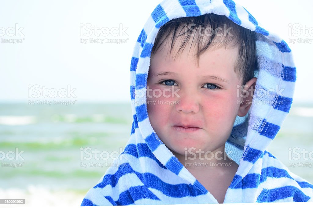 Small child with redness on the skin, food allergies stock photo