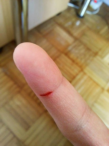 Small cut on a finger圖像檔