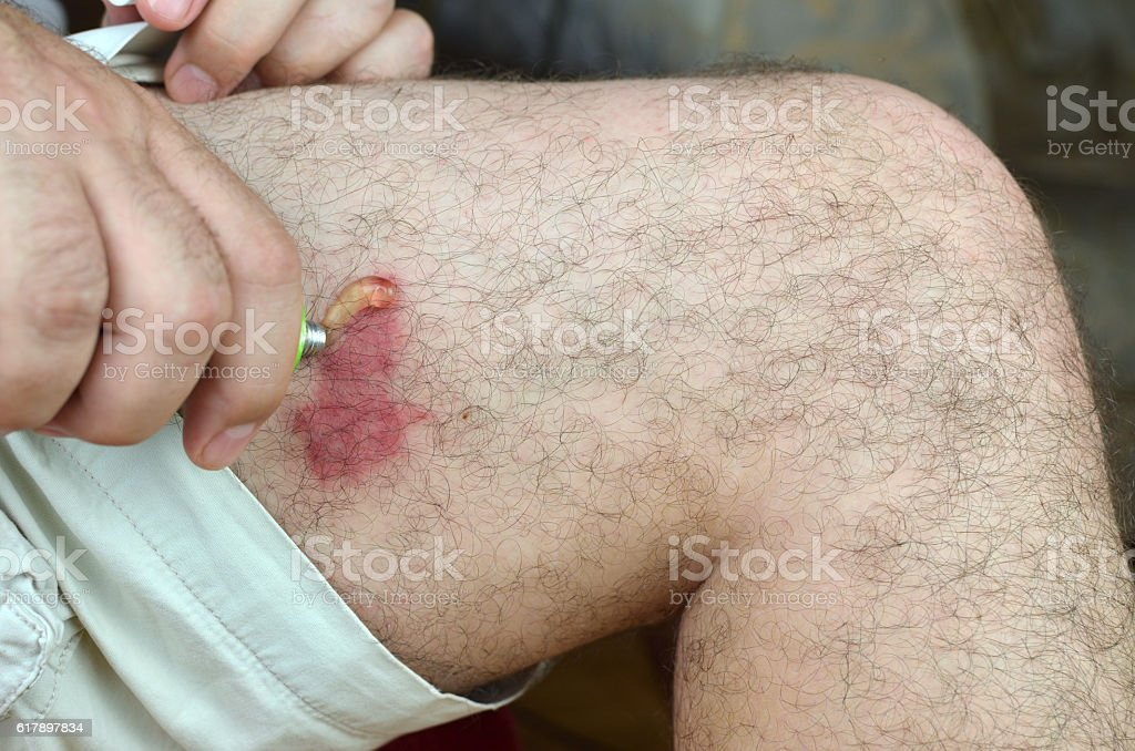 Smearing Gel on Skin stock photo