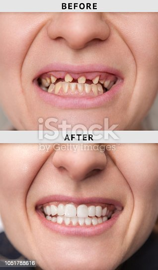 istock smile after and before dental crown installation process 1051788616