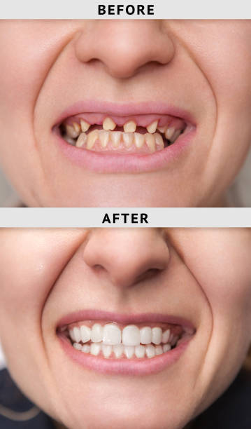 smile after and before dental crown installation process - dental implants stock photos and pictures