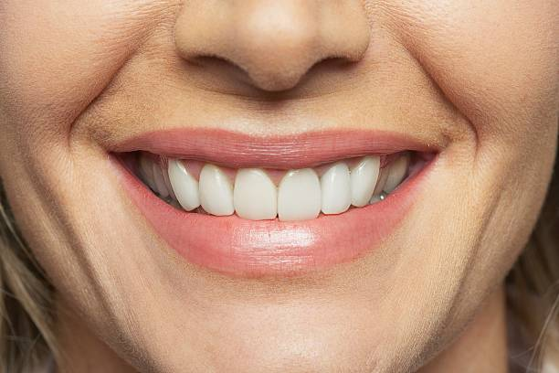 smile - dental implants stock photos and pictures