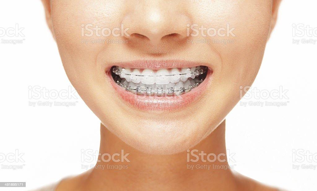 Sonrisa: Dientes con aparatos de ortodoncia - foto de stock