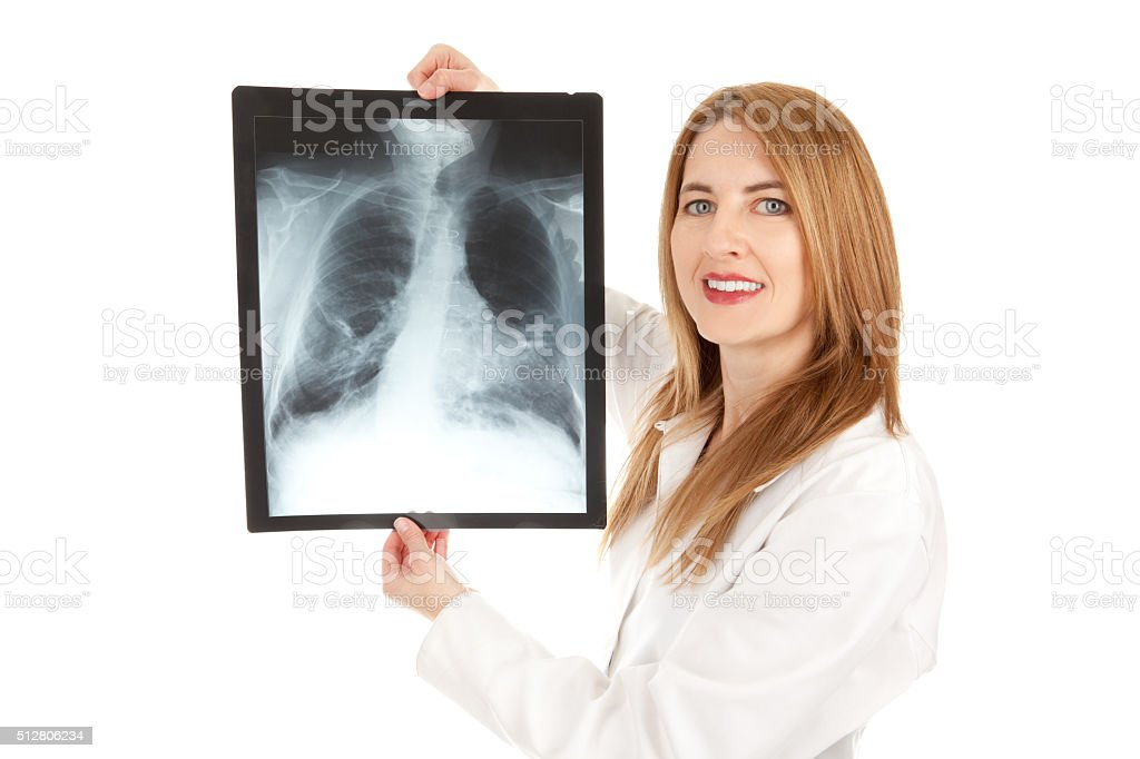 Smiling Doctor Holding Chest X-Ray stock photo