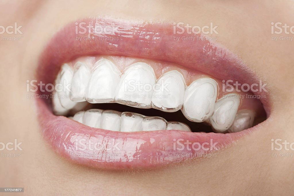 Smiling mouth with teeth-whitening tray stock photo