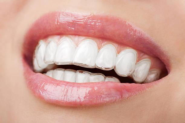 lächeln mund mit zahn-tablett zahnaufhellung - menschlicher mund stock-fotos und bilder