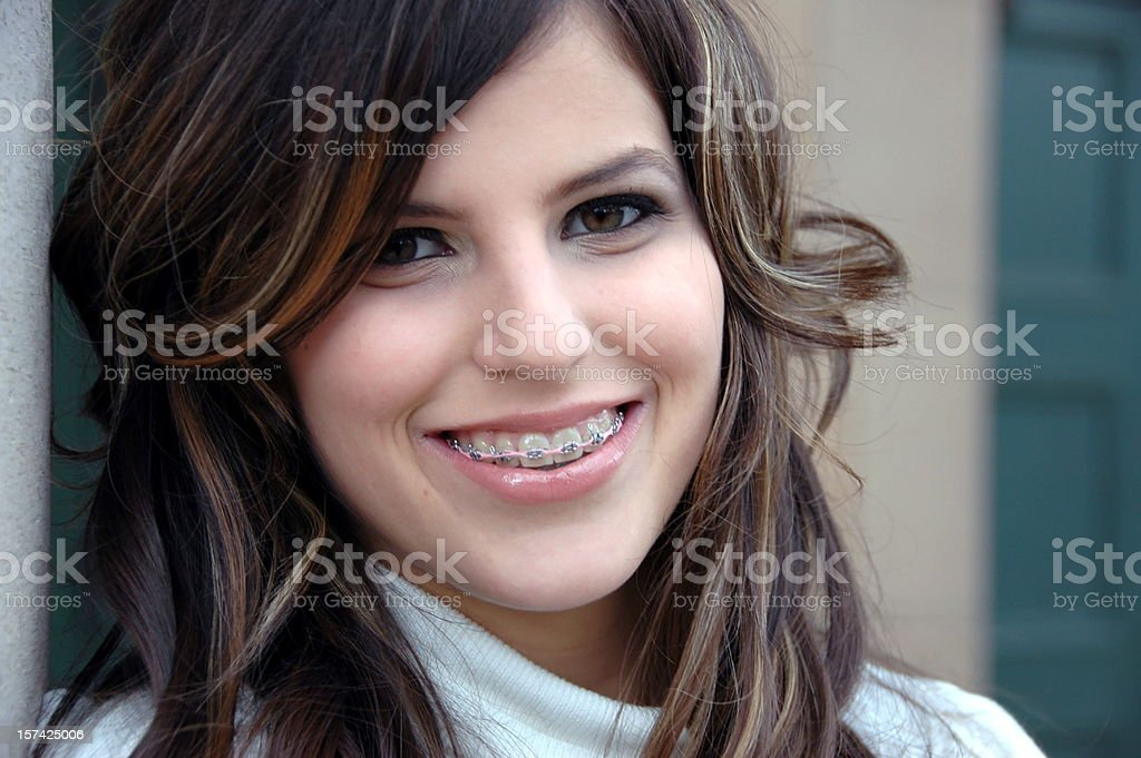Smiling with Braces Beautiful teenage girl with braces. Click photo below to see more of this model. 16-17 Years Stock Photo