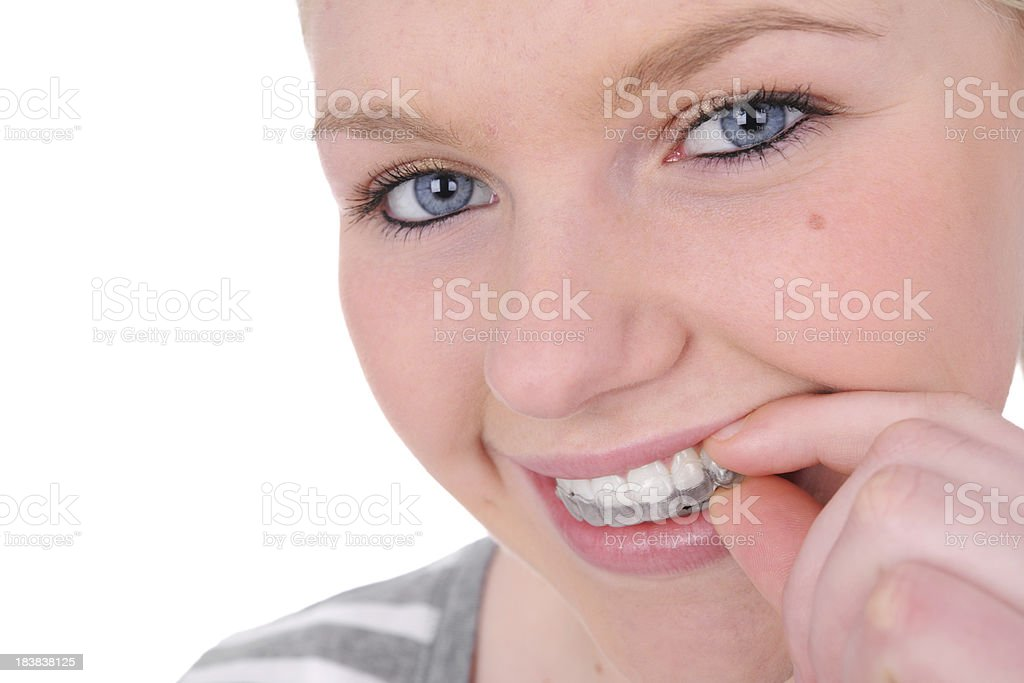 Smiling woman taking retainer from mouth on white background stock photo