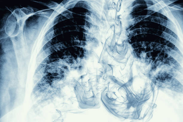 Smoke visible on chest X-ray image  lung stock pictures, royalty-free photos & images