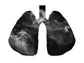 istock smoking and unhealthy lifestyle concept human lungs filled with dark smoke 1307547694