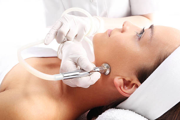 Smoothing the skin, microdermabrasion diamond Relaxed woman during a microdermabrasion treatment in beauty salon aha stock pictures, royalty-free photos & images