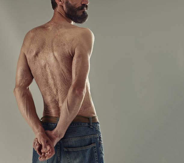 schlange-wie struktur der menschlichen haut verbrannt. rückseite des erwachsenen mannes beschädigt. - die wahrheit tut weh stock-fotos und bilder