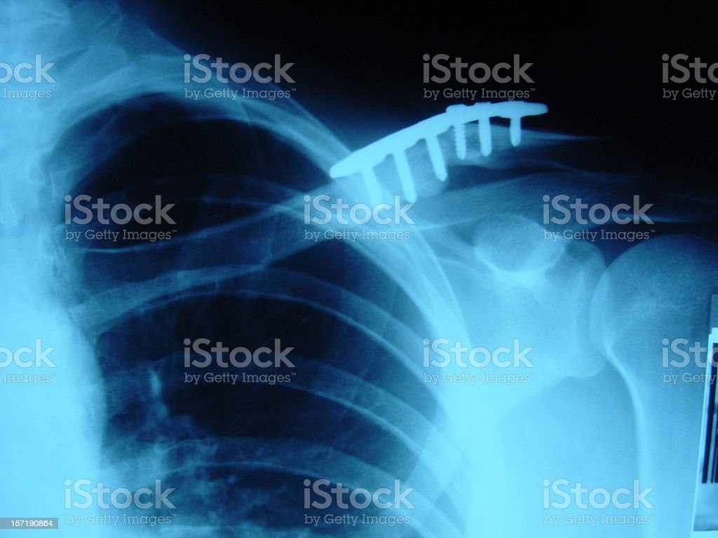 snowboarding injury stock photo