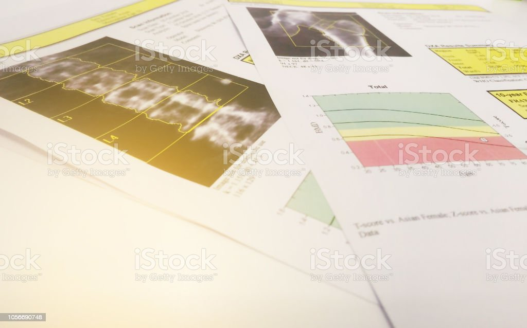 Soft and blurry image: bone density hip and lumbarspine Result Osteoporosis .on bright background stock photo