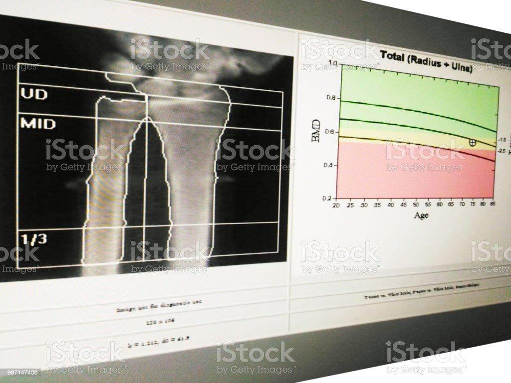 Soft and blurry image: special examination medical image wrist bone density on white background. stock photo