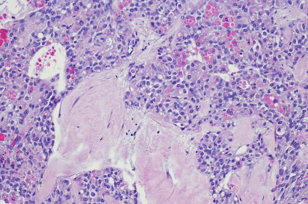 Solid pseudopapillary tumor (SPT) of the pancreas stock photo