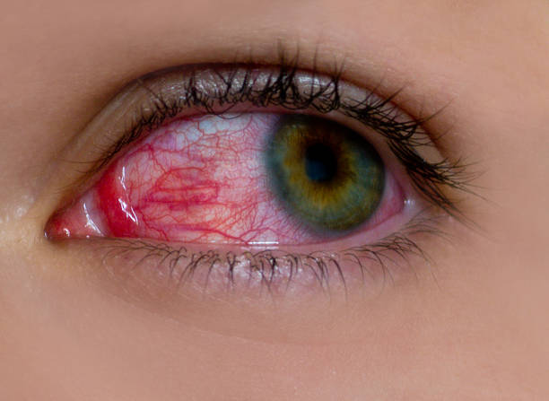 sore eye stock photo