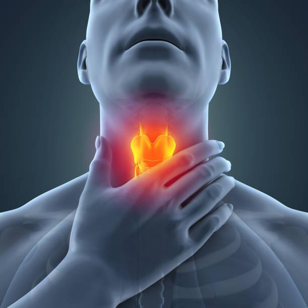 ilustração de dor de garganta - cancer da tireoide - fotografias e filmes do acervo