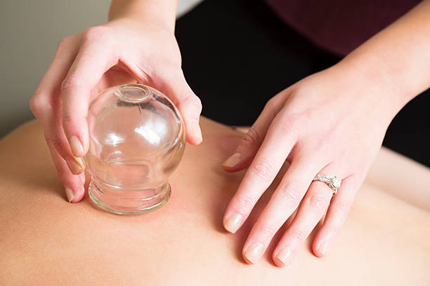 spa therapist performs massage cupping therapy - cupping therapy stock photos and pictures